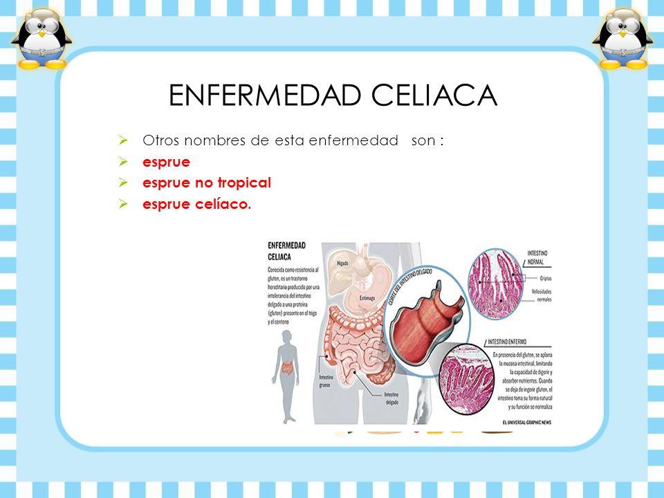 ENFERMEDAD CELIACA Otros nombres de esta enfermedad son : esprue esprue no tropical esprue celíaco.