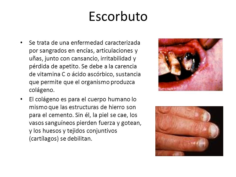 Escorbuto Se trata de una enfermedad caracterizada por sangrados en encías, articulaciones y uñas, junto con cansancio, irritabilidad y pérdida de ape