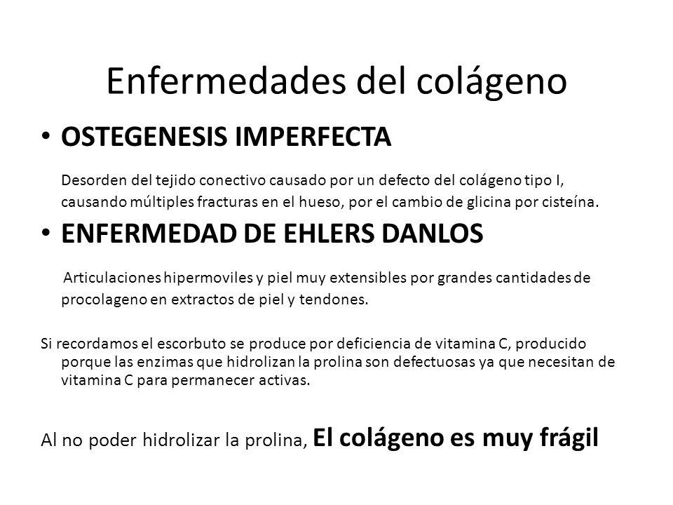 Enfermedades del colágeno OSTEGENESIS IMPERFECTA Desorden del tejido conectivo causado por un defecto del colágeno tipo I, causando múltiples fractura