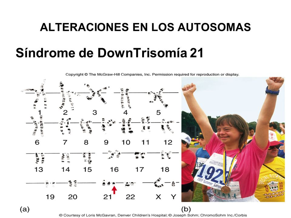 ALTERACIONES EN LOS AUTOSOMAS Síndrome de DownTrisomía 21