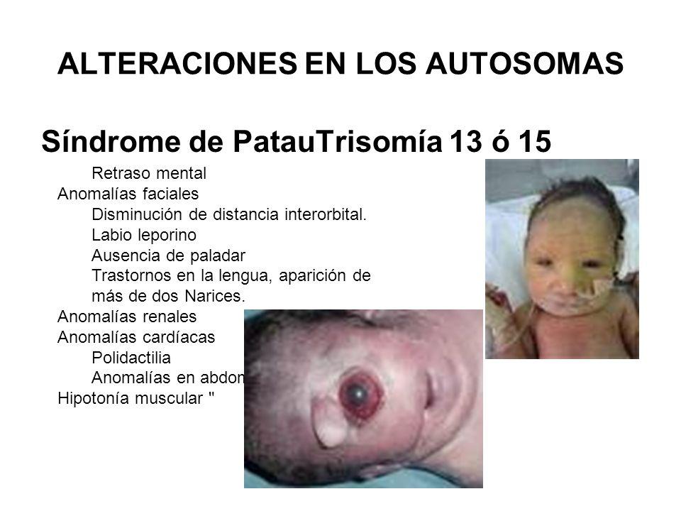 ALTERACIONES EN LOS AUTOSOMAS Síndrome de PatauTrisomía 13 ó 15 Retraso mental Anomalías faciales Disminución de distancia interorbital. Labio leporin