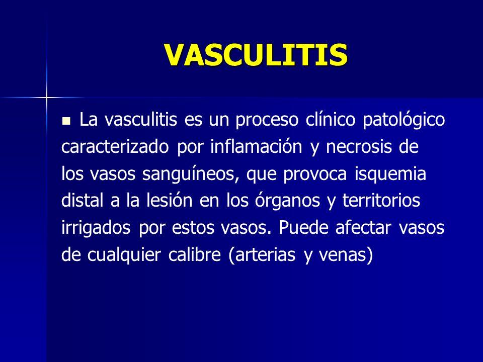 VASCULITIS La vasculitis es un proceso clínico patológico caracterizado por inflamación y necrosis de los vasos sanguíneos, que provoca isquemia dista