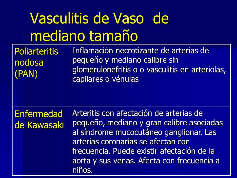 Vasculitis de Vaso de mediano tamaño Poliarteritis nodosa (PAN) Inflamación necrotizante de arterias de pequeño y mediano calibre sin glomerulonefriti
