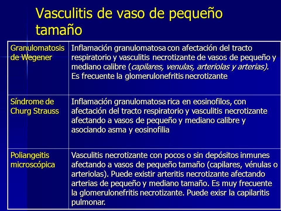Vasculitis de vaso de pequeño tamaño Granulomatosis de Wegener Inflamación granulomatosa con afectación del tracto respiratorio y vasculitis necrotiza