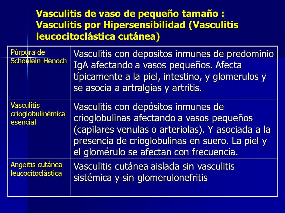Vasculitis de vaso de pequeño tamaño : Vasculitis por Hipersensibilidad (Vasculitis leucocitoclástica cutánea) Púrpura de Schonlein-Henoch Vasculitis