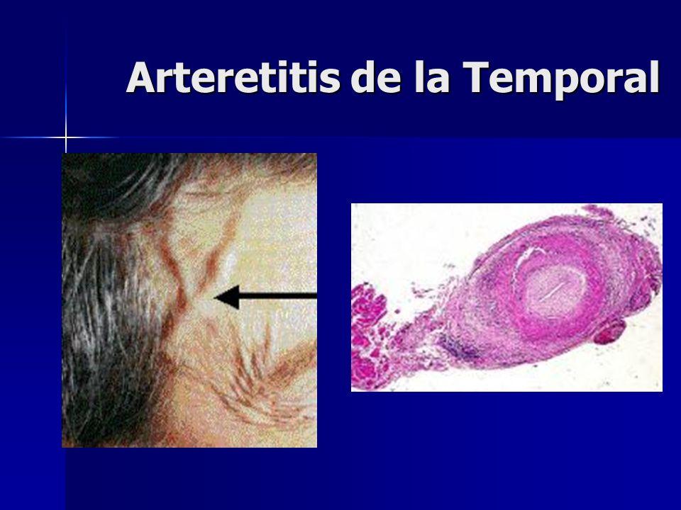 Arteretitis de la Temporal
