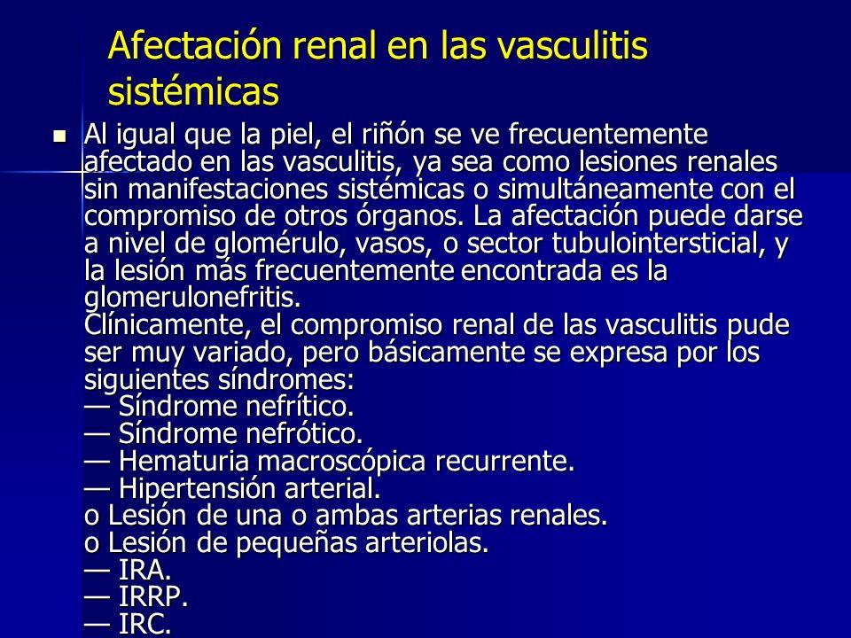 Afectación renal en las vasculitis sistémicas Al igual que la piel, el riñón se ve frecuentemente afectado en las vasculitis, ya sea como lesiones ren