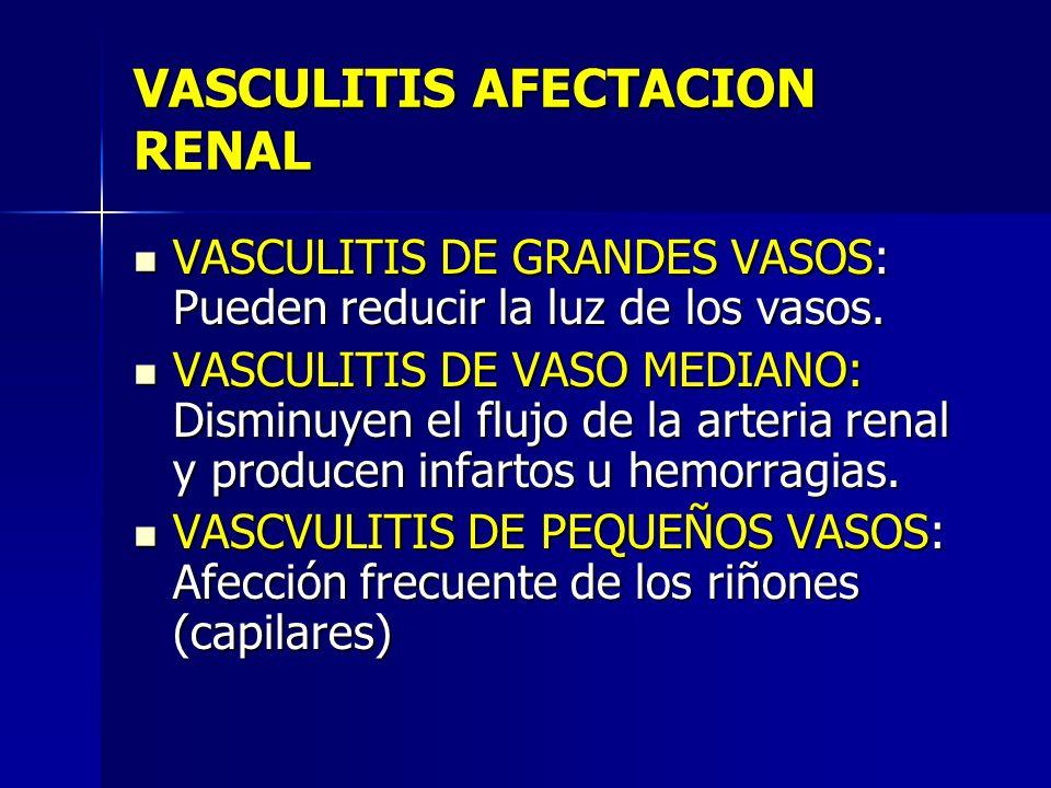 VASCULITIS AFECTACION RENAL VASCULITIS DE GRANDES VASOS: Pueden reducir la luz de los vasos. VASCULITIS DE GRANDES VASOS: Pueden reducir la luz de los