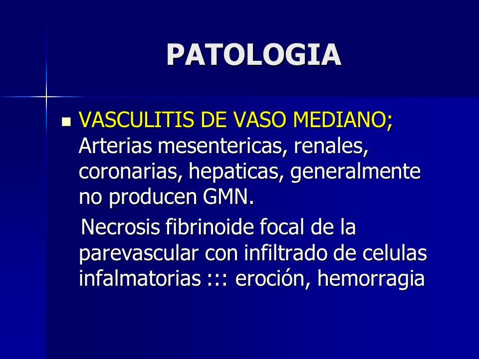 PATOLOGIA VASCULITIS DE VASO MEDIANO; Arterias mesentericas, renales, coronarias, hepaticas, generalmente no producen GMN. VASCULITIS DE VASO MEDIANO;