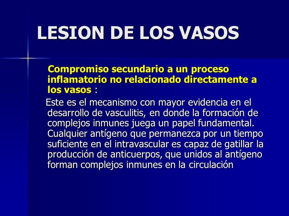 LESION DE LOS VASOS Compromiso secundario a un proceso inflamatorio no relacionado directamente a los vasos : Compromiso secundario a un proceso infla