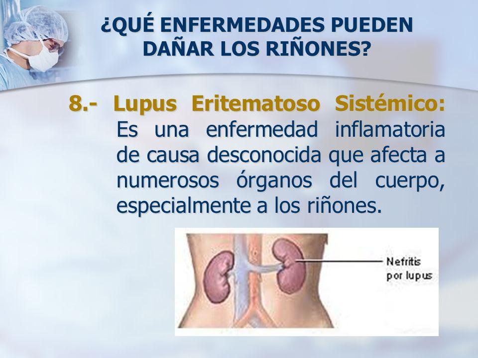 ¿QUÉ ENFERMEDADES PUEDEN DAÑAR LOS RIÑONES? 8.- Lupus Eritematoso Sistémico: Es una enfermedad inflamatoria de causa desconocida que afecta a numeroso