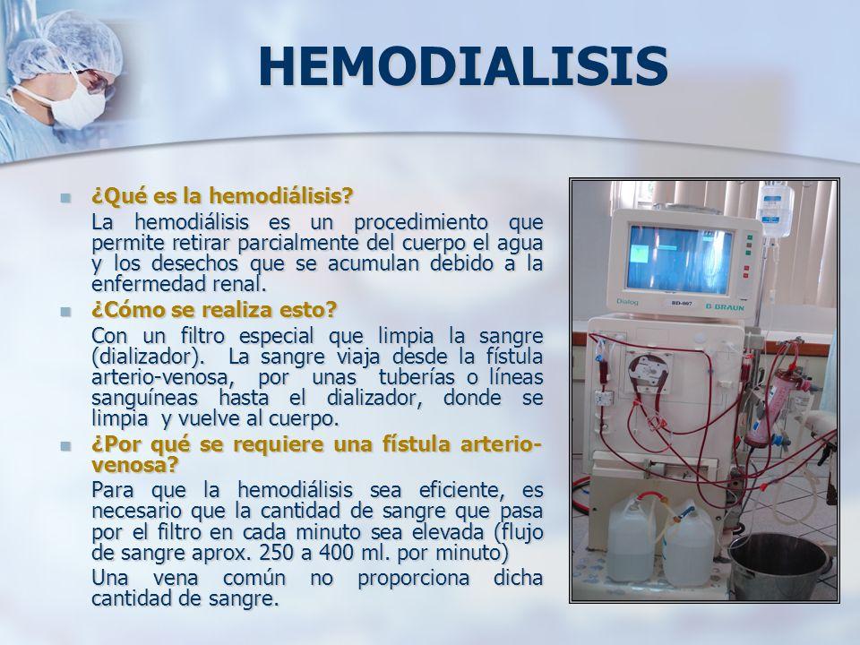 HEMODIALISIS ¿Qué es la hemodiálisis? ¿Qué es la hemodiálisis? La hemodiálisis es un procedimiento que permite retirar parcialmente del cuerpo el agua