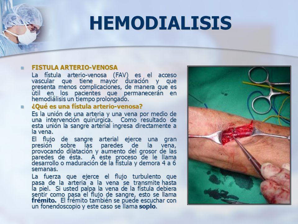 HEMODIALISIS FISTULA ARTERIO-VENOSA FISTULA ARTERIO-VENOSA La fístula arterio-venosa (FAV) es el acceso vascular que tiene mayor duración y que presen