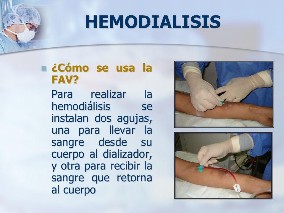 HEMODIALISIS ¿Cómo se usa la FAV? ¿Cómo se usa la FAV? Para realizar la hemodiálisis se instalan dos agujas, una para llevar la sangre desde su cuerpo