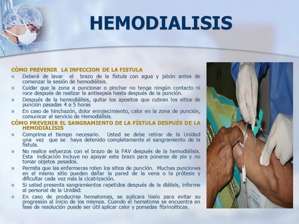 HEMODIALISIS CÓMO PREVENIR LA INFECCION DE LA FISTULA Deberá de lavar el brazo de la fístula con agua y jabón antes de comenzar la sesión de hemodiáli
