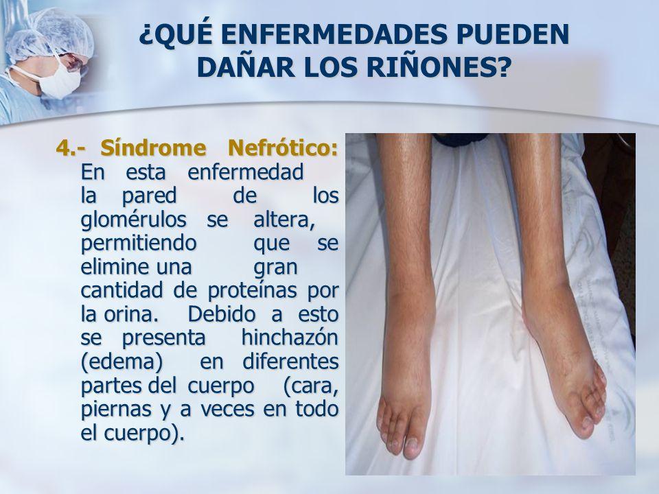 ¿QUÉ ENFERMEDADES PUEDEN DAÑAR LOS RIÑONES? 4.- Síndrome Nefrótico: En esta enfermedad la pared de los glomérulos se altera, permitiendo que se elimin