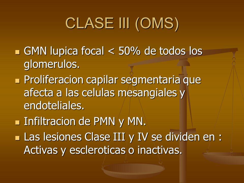 CLASE III (OMS) GMN lupica focal < 50% de todos los glomerulos. GMN lupica focal < 50% de todos los glomerulos. Proliferacion capilar segmentaria que