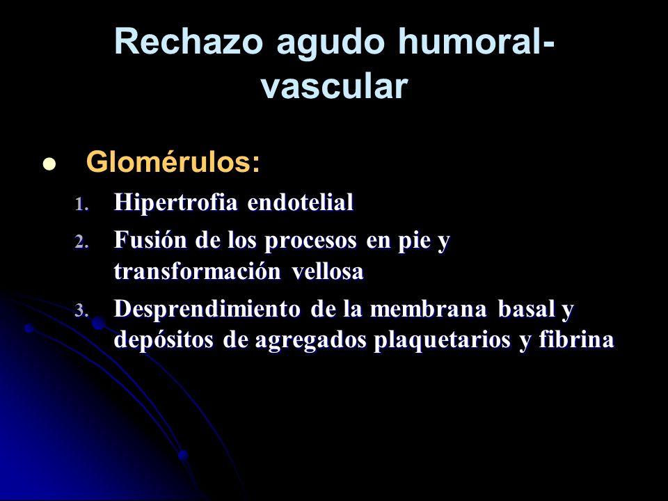 Rechazo agudo humoral- vascular Glomérulos: 1. Hipertrofia endotelial 2. Fusión de los procesos en pie y transformación vellosa 3. Desprendimiento de