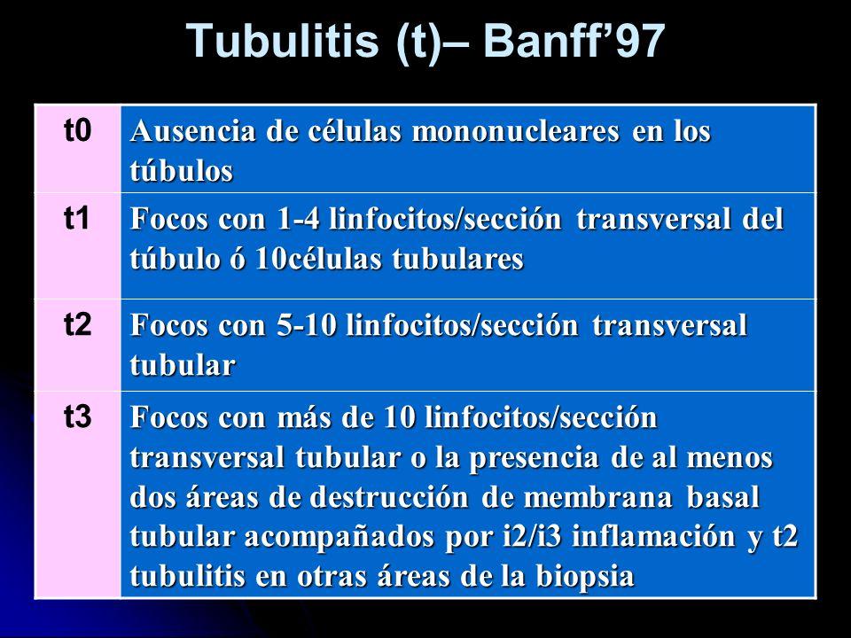 Tubulitis (t)– Banff97 t0 Ausencia de células mononucleares en los túbulos t1 Focos con 1-4 linfocitos/sección transversal del túbulo ó 10células tubu