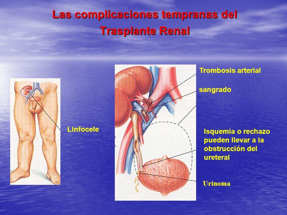 Las complicaciones tempranas del Trasplante Renal Las complicaciones tempranas del Trasplante Renal Trombosis arterial sangrado Isquemia o rechazo pue