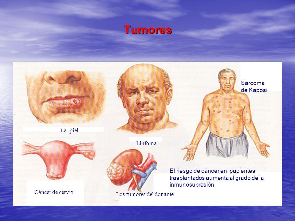 Tumores La piel Linfoma Sarcoma de Kaposi Cáncer de cervix Los tumores del donante El riesgo de cáncer en pacientes trasplantados aumenta al grado de