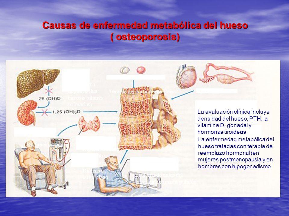 Causas de enfermedad metabólica del hueso ( osteoporosis) El trastorno hepático (las cirrosis biliares primarias) Terapia del corticoesteroides Hipogo
