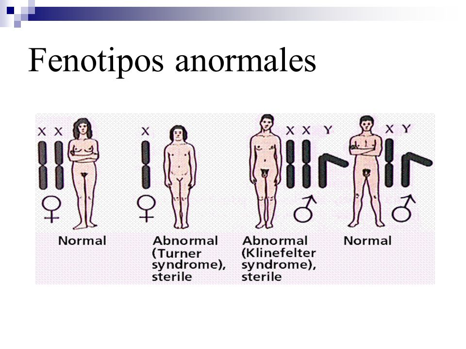 Fenotipos anormales