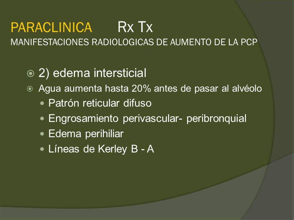 PARACLINICA Rx Tx MANIFESTACIONES RADIOLOGICAS DE AUMENTO DE LA PCP 2) edema intersticial Agua aumenta hasta 20% antes de pasar al alvéolo Patrón reti