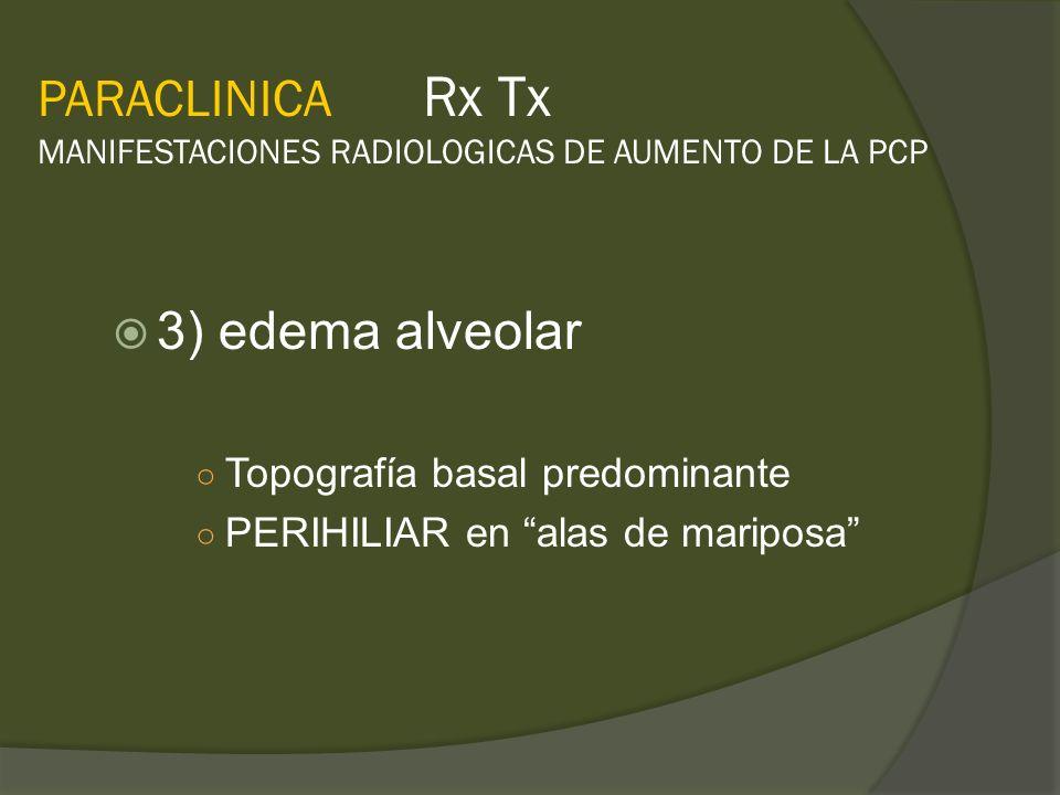 PARACLINICA Rx Tx MANIFESTACIONES RADIOLOGICAS DE AUMENTO DE LA PCP 3) edema alveolar Topografía basal predominante PERIHILIAR en alas de mariposa
