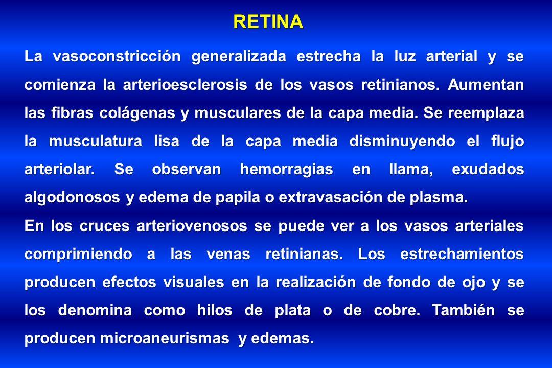 RETINA La vasoconstricción generalizada estrecha la luz arterial y se comienza la arterioesclerosis de los vasos retinianos. Aumentan las fibras colág