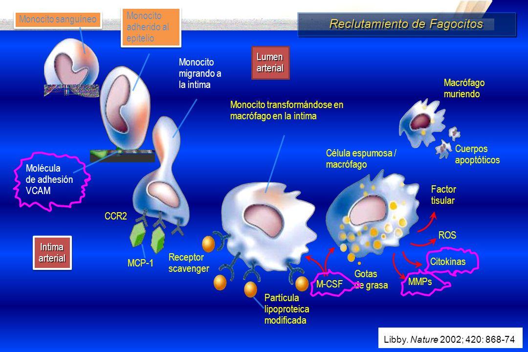 Intima arterial Lumen arterial Macrófago muriendo Cuerpos apoptóticos Célula espumosa / macrófago Gotas de grasa Monocito adherido al epitelio Molécul