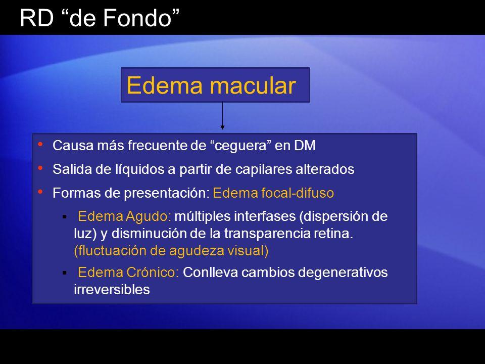 RD de Fondo Edema macular Causa más frecuente de ceguera en DM Salida de líquidos a partir de capilares alterados Formas de presentación: Edema focal-