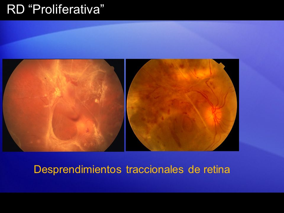 RD Proliferativa Desprendimientos traccionales de retina