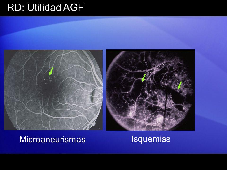 RD: Utilidad AGF Microaneurismas Isquemias