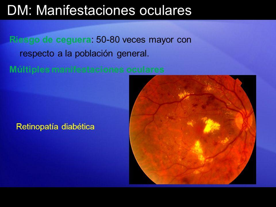 DM: Manifestaciones oculares Riesgo de ceguera: 50-80 veces mayor con respecto a la población general. Múltiples manifestaciones oculares Retinopatía