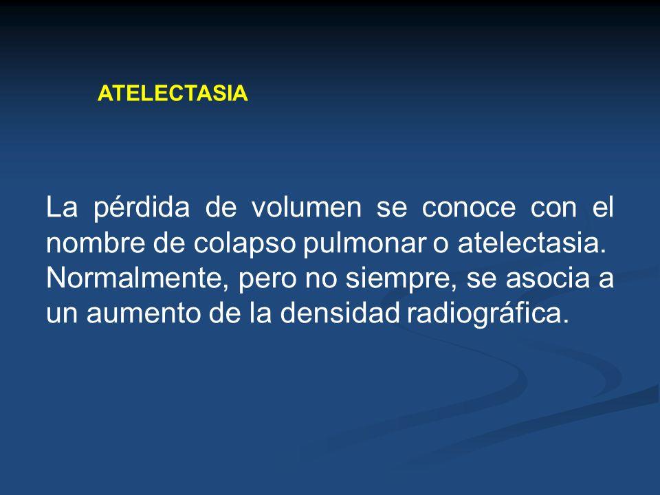 ATELECTASIA La pérdida de volumen se conoce con el nombre de colapso pulmonar o atelectasia. Normalmente, pero no siempre, se asocia a un aumento de l