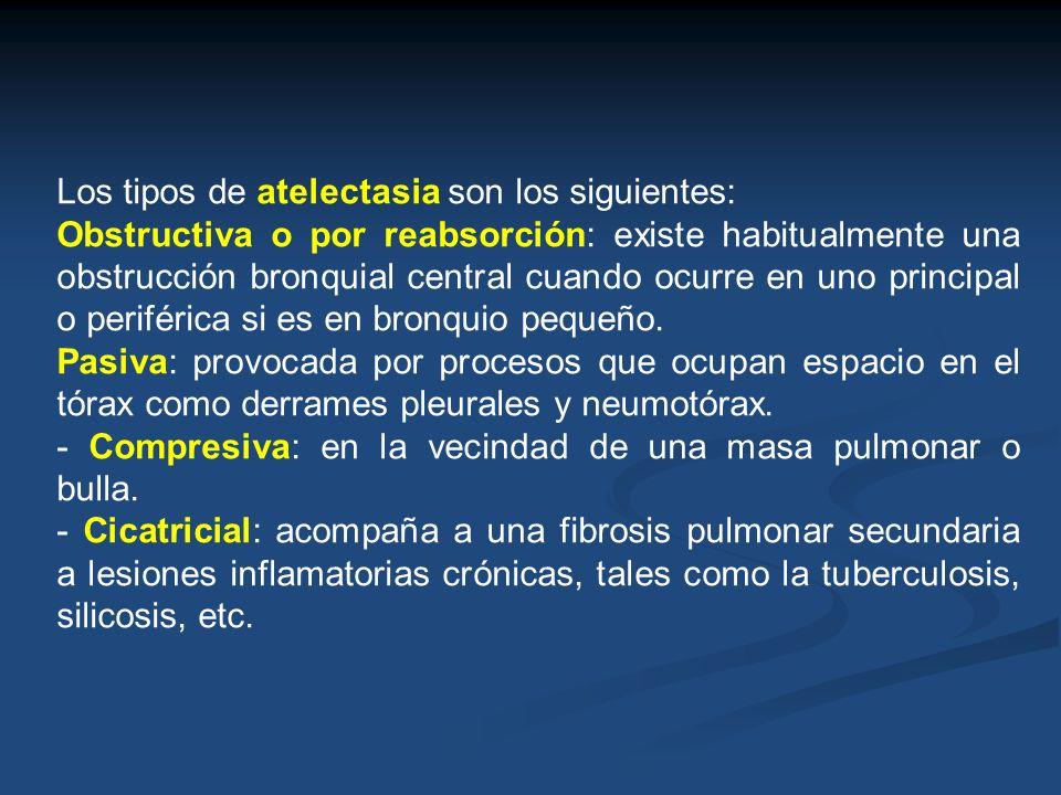 Los tipos de atelectasia son los siguientes: Obstructiva o por reabsorción: existe habitualmente una obstrucción bronquial central cuando ocurre en un