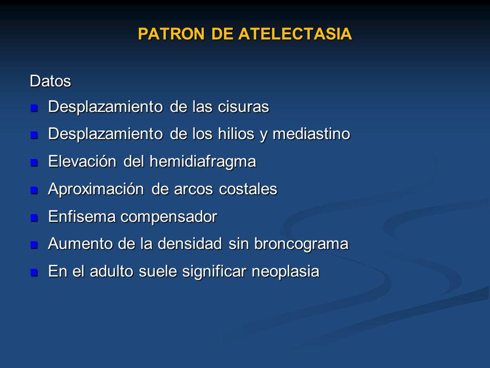 PATRON DE ATELECTASIA Datos Desplazamiento de las cisuras Desplazamiento de las cisuras Desplazamiento de los hilios y mediastino Desplazamiento de lo