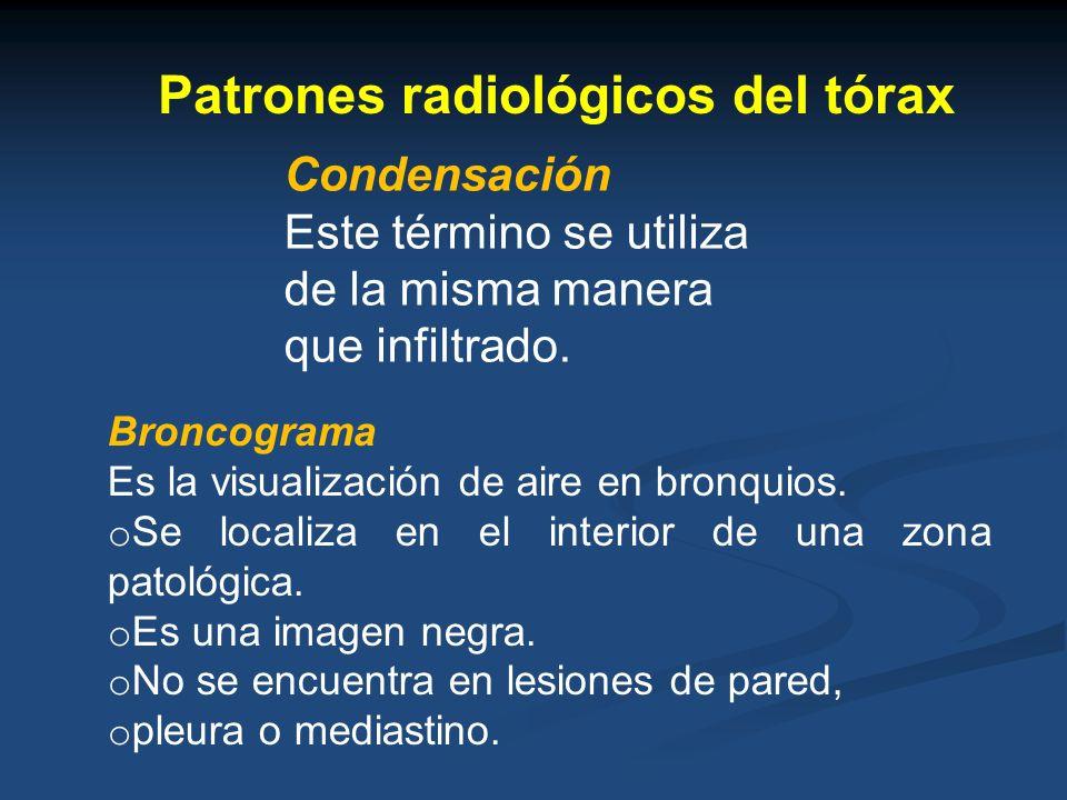 Patrones radiológicos del tórax Condensación Este término se utiliza de la misma manera que infiltrado. Broncograma Es la visualización de aire en bro