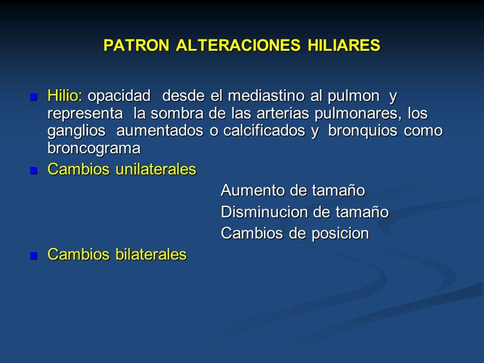 PATRON ALTERACIONES HILIARES Hilio: opacidad desde el mediastino al pulmon y representa la sombra de las arterias pulmonares, los ganglios aumentados