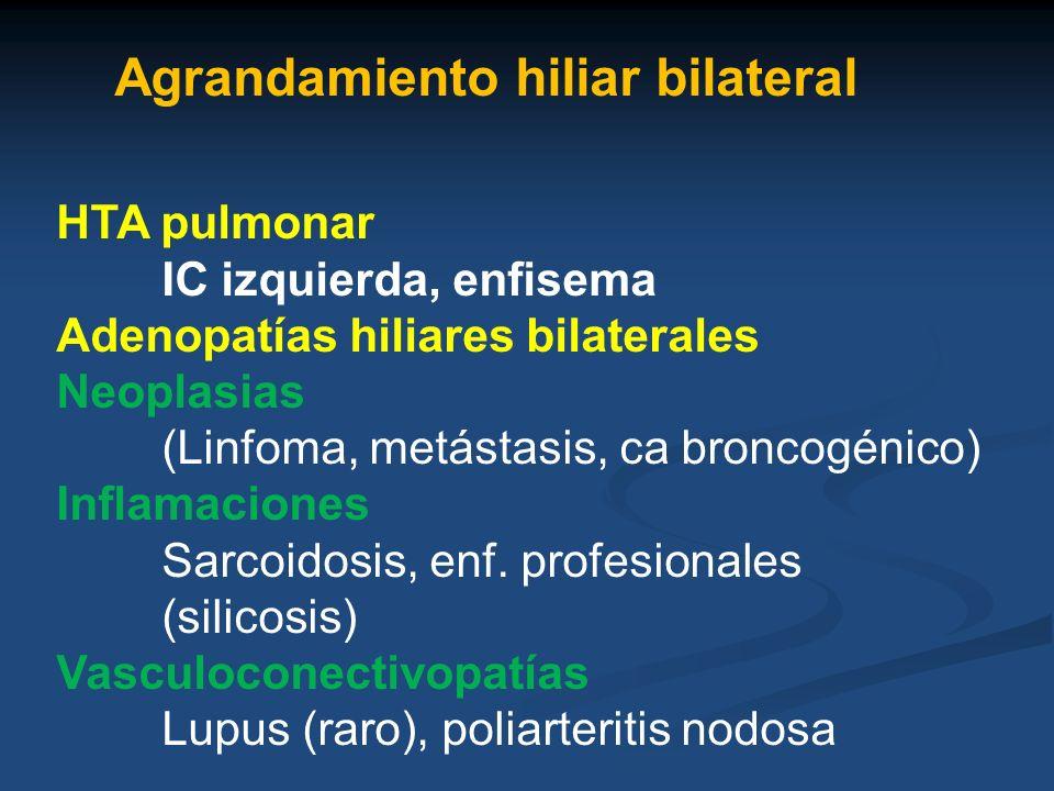 Agrandamiento hiliar bilateral HTA pulmonar IC izquierda, enfisema Adenopatías hiliares bilaterales Neoplasias (Linfoma, metástasis, ca broncogénico)