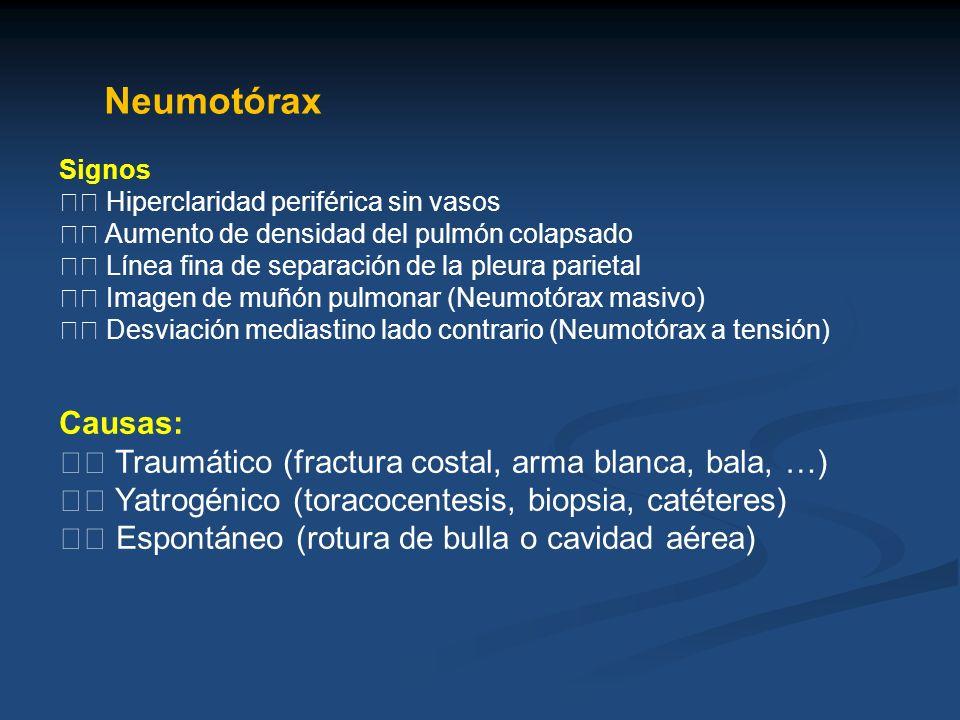 Neumotórax Signos Hiperclaridad periférica sin vasos Aumento de densidad del pulmón colapsado Línea fina de separación de la pleura parietal Imagen de