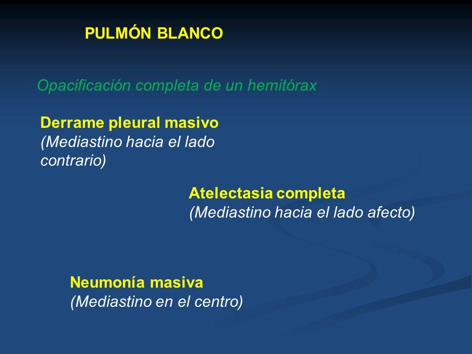 PULMÓN BLANCO Opacificación completa de un hemitórax Derrame pleural masivo (Mediastino hacia el lado contrario) Atelectasia completa (Mediastino haci