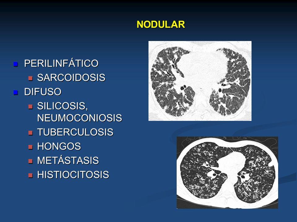 NODULAR PERILINFÁTICO PERILINFÁTICO SARCOIDOSIS SARCOIDOSIS DIFUSO DIFUSO SILICOSIS, NEUMOCONIOSIS SILICOSIS, NEUMOCONIOSIS TUBERCULOSIS TUBERCULOSIS