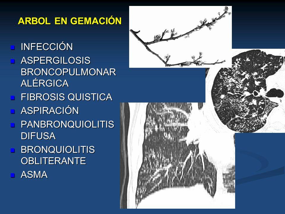 ARBOL EN GEMACIÓN INFECCIÓN INFECCIÓN ASPERGILOSIS BRONCOPULMONAR ALÉRGICA ASPERGILOSIS BRONCOPULMONAR ALÉRGICA FIBROSIS QUISTICA FIBROSIS QUISTICA AS