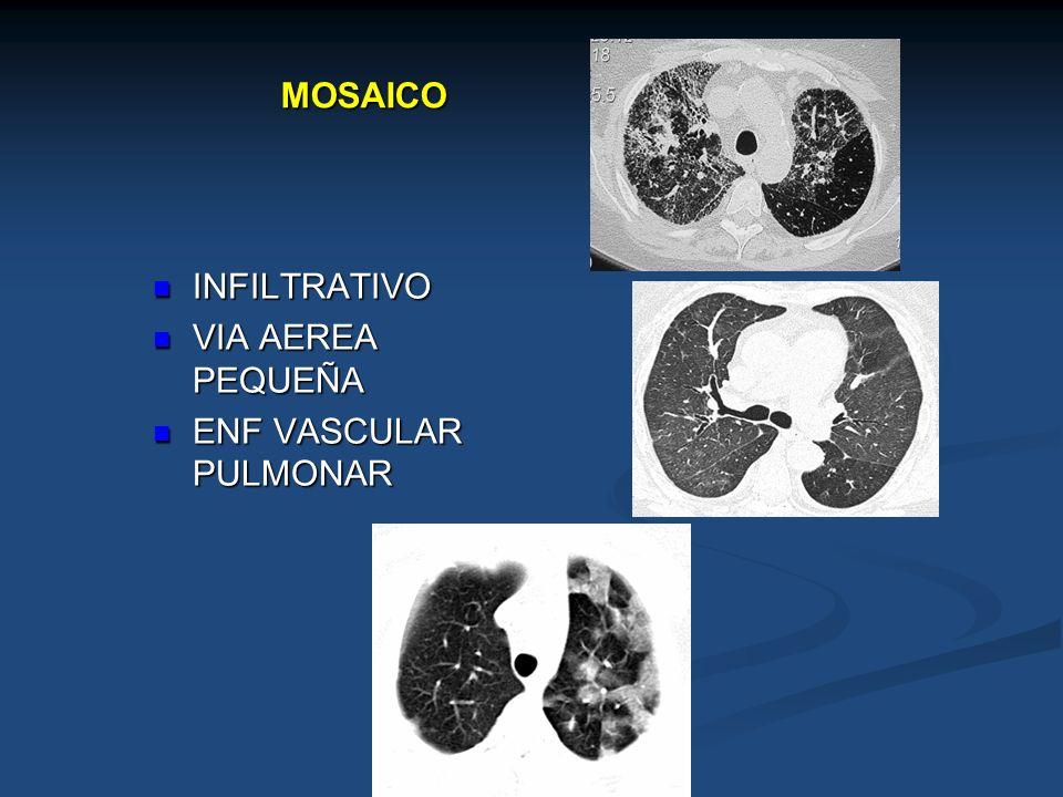 MOSAICO INFILTRATIVO INFILTRATIVO VIA AEREA PEQUEÑA VIA AEREA PEQUEÑA ENF VASCULAR PULMONAR ENF VASCULAR PULMONAR