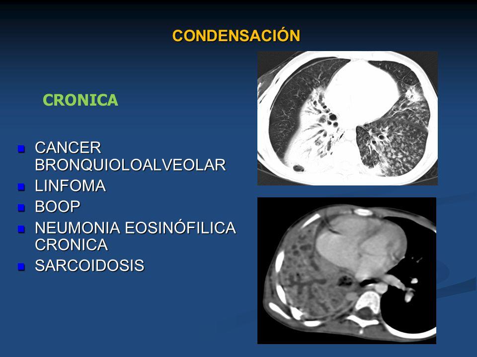 CONDENSACIÓN CANCER BRONQUIOLOALVEOLAR CANCER BRONQUIOLOALVEOLAR LINFOMA LINFOMA BOOP BOOP NEUMONIA EOSINÓFILICA CRONICA NEUMONIA EOSINÓFILICA CRONICA