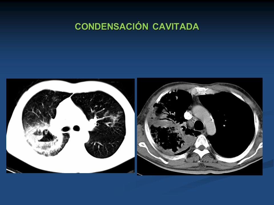 CONDENSACIÓN CAVITADA