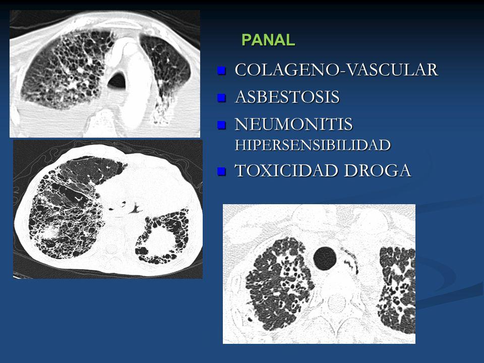 PANAL COLAGENO-VASCULAR COLAGENO-VASCULAR ASBESTOSIS ASBESTOSIS NEUMONITIS HIPERSENSIBILIDAD NEUMONITIS HIPERSENSIBILIDAD TOXICIDAD DROGA TOXICIDAD DR