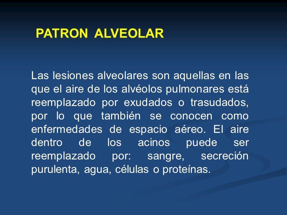 PATRON ALVEOLAR Las lesiones alveolares son aquellas en las que el aire de los alvéolos pulmonares está reemplazado por exudados o trasudados, por lo